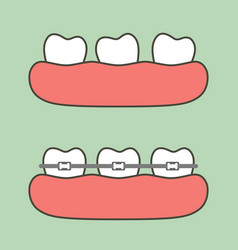 Step of orthodontics treatment vector