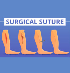 Medical suture concept background cartoon style vector