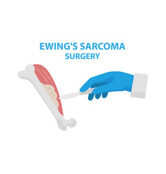 ewing s sarcoma surgery vector image