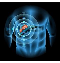 Liver cancer diagram showing details vector