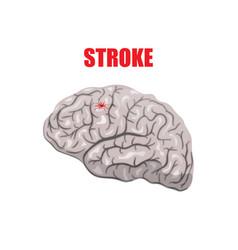 A hemorrhagic stroke vector