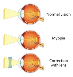 Myopia and myopia corrected by a minus lens vector image