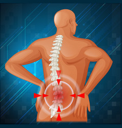 Spine diagram showing back pain vector