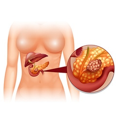 Pancreas cancer in woman vector image