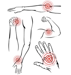 Arm pain vector