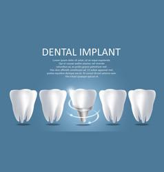 Dental implant medical poster banner vector