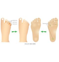 Corns and calluses vector