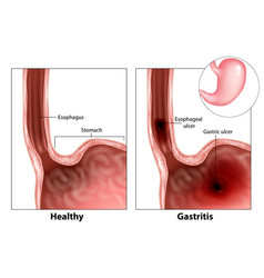 Gastritis and esophageal ulcer vector