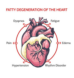 fatty degeneration heart symptoms of vector image