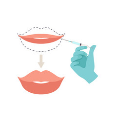 lips augmentation procedure hyaluronic acid lip vector image
