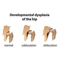 Dysplasia of the Hip vector image vector image