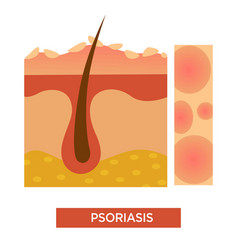 Psoriasis skin disease or illness dermatology vector