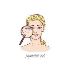 Pigmented spot face skin care problem - cartoon vector
