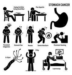 stomach cancer symptoms causes risk factors vector image
