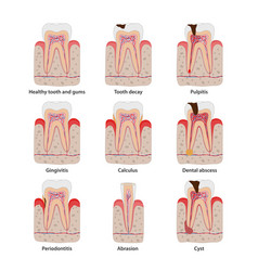 Popular teeth diseases icons in flat design vector