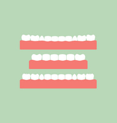 set of healthy teeth on gum vector image