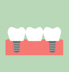 dental bridge vector image