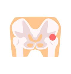 femural joint pain hip injury cartoon vector image
