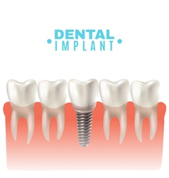 Dental implant model side view poster vector