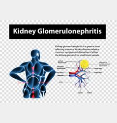 Diagram showing kidney glomerulonephritis vector