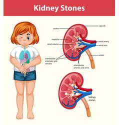 Human kidney stones cartoon style infographic vector