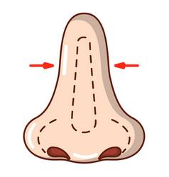 Rhinoplasty icon cartoon style vector