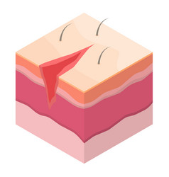 Open surgical suture icon isometric style vector