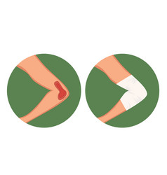 open gap injured elbow and medical dressing vector image