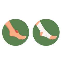 Open torn cut wound bruised foot and medical vector