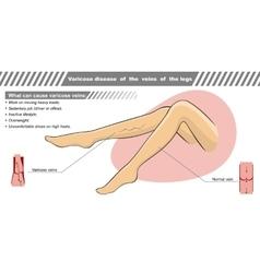 a varicose illness of veins vector image