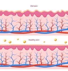 Collagen human skin effect Close up damaged old vector image