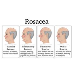 Rosacea vector