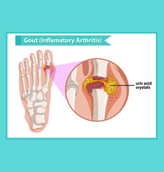 scientific medical gout arthritis vector image