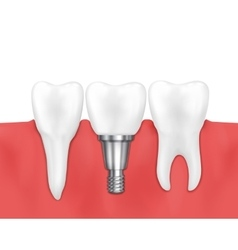 Dental implant and normal tooth vector image vector image