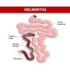 Helminths on Small intestine vector image