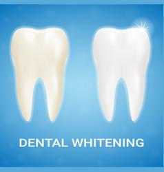 tooth veneer teeth whitening whitening vector image