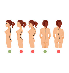 types of curvature of the spine vector image