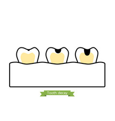 Stages of decay tooth - cartoon outline style vector