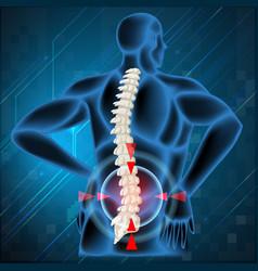 Spine bone showing back pain vector image