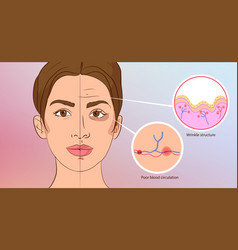 Premature wrinkles cosmetology aging skin vector