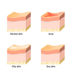 Normal dry and oily skin acne skin disorder vector