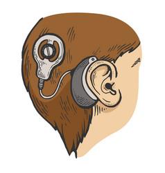Cochlear implant color sketch engraving vector