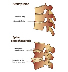 Healthy and sick spine vector image
