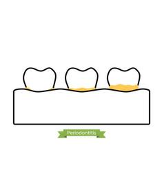 Dental plaque or tartar - cartoon outline style vector