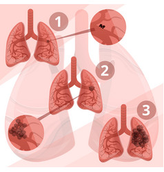 Lung system infographic cartoon style vector