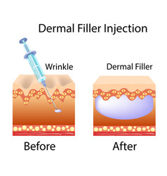 With cosmetic filler or dermal vector