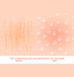 Nutrition and hydration of the skin vector