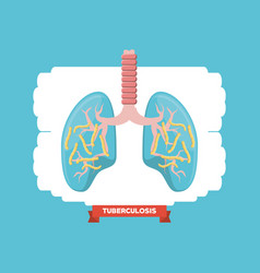 tubereculosis concept design vector image