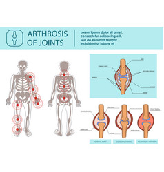Arthrosis of joints vector