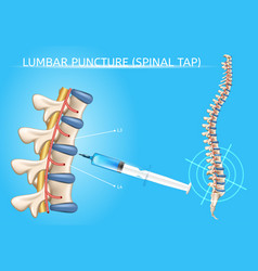 Lumbar puncture realistic medical scheme vector